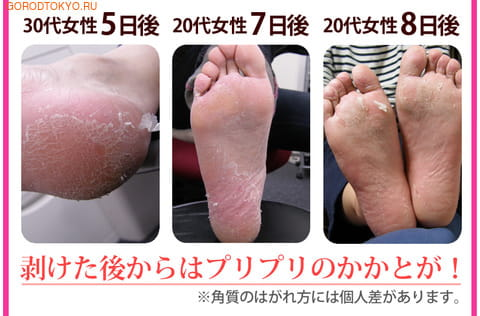 """SOSU НОВИНКА! 2 ПАРЫ В УПАКОВКЕ! """"SOSU"""" - носочки для педикюра, с ароматом лаванды. Размер 35-41. (фото, вид 2)"""