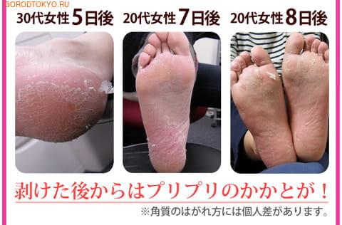 """SOSU НОВИНКА! 1 ПАРА В УПАКОВКЕ! """"SOSU"""" - носочки для педикюра, с ароматом мяты. Размер 35-41. (фото, вид 1)"""